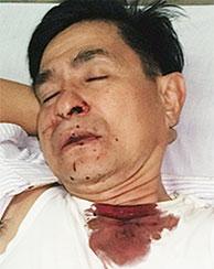 Quang injured